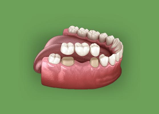 Treatment - Thurmaston Dental Practice